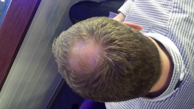 bald_patch